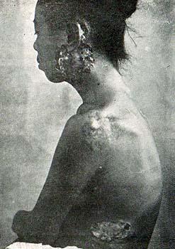 梅毒の症状と歴史