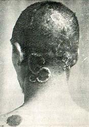 梅毒 実験 タスキーギ